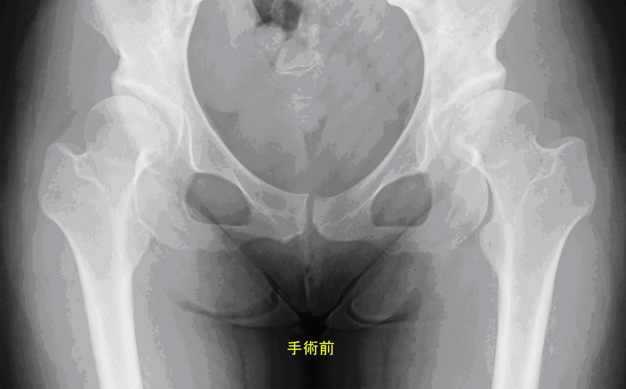 壊死 股関節