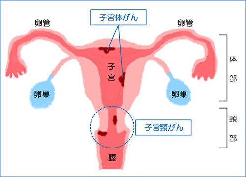 子 宮頸 が ん 原因